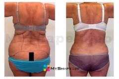 abdomen-09