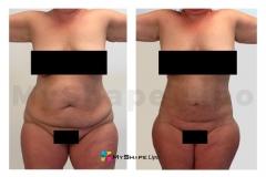 abdomen-12