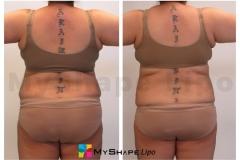 abdomen-15