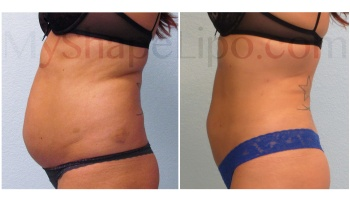 Upper and Lower Abdomen, Love Handles, Hips and Back Bra Rolls - 6 weeks