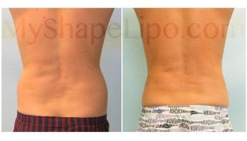 Hips - 6 weeks