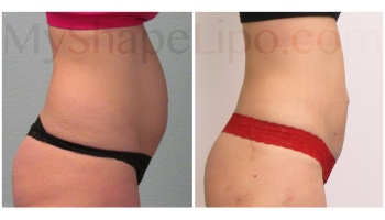 Upper and Lower Abdomen and Hips - 2 weeks