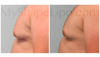 Chest with SmartLipo - 6 months