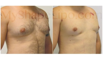 Chest with SmartLipo - 2 weeks