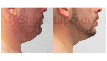 Chin - 5 months