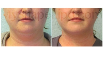 Chin with SmartLipo 2 weeks