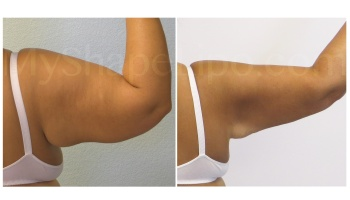 Arms with SmartLipo - 1 year