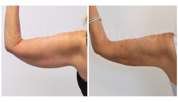 Arms with SmartLipo - 2 weeks