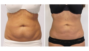 Upper and Lower Abdomen, Love Handles and Hips, SmartLipo on Lower Abdomen - 3 months