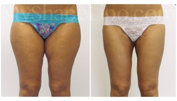 Inner and Outer Thighs with SmartLipo on both - 2 months