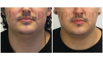 Chin with SmartLipo - 5.5 weeks