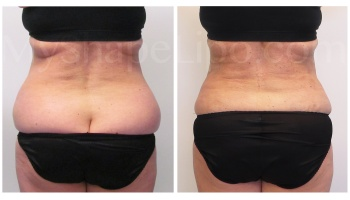 Love Handles and Hips with SmartLipo on both - 2 weeks