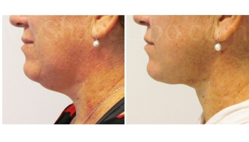 Chin with SmartLipo - 2 weeks
