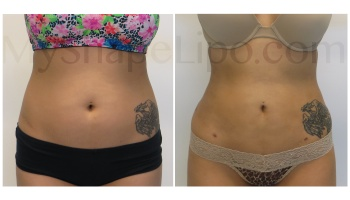 Upper and Lower Abdomen, Love Handles and Hips - 6 weeks