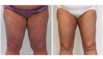 Inner and Outer Thighs and Knees, SmartLipo on Inner and Outer Thighs - 2 months