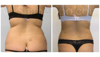Love Handles and Hips, SmartLipo on both - 10 months