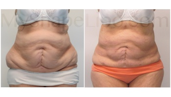 Upper and Lower Abdomen, Love Handles and Hips - 8.5 months