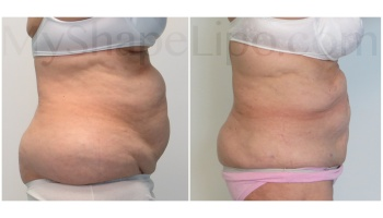 Upper and Lower Abdomen, Love Handles and Hips - 11 months