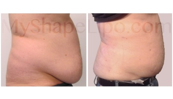 Upper and Lower Abdomen, Love Handles, Hips, and Pannus - 1 month