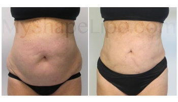 Upper and Lower Abdomen, Love Handles, Hips, and Pannus, SmartLipo on all - 6 months