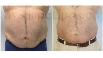 Upper and Lower Abdomen, Love Handles and Hips, SmartLipo Lower Abdomen - 6 weeks