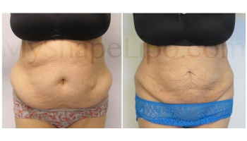 Upper and Lower Abdomen, Love Handles and Hips, SmartLipo on all - 1 month