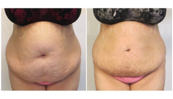 Upper and Lower Abdomen and Pannus - 2 weeks