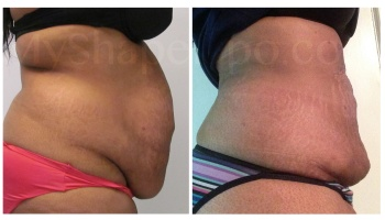 Upper and Lower Abdomen, and Pannus, SmartLipo on all - 3 weeks