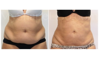Upper and Lower Abdomen, Love Handles and Hips - 3 months