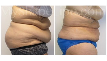 Upper and Lower Abdomen, Pannus, Love Handles and Hips - 6 weeks