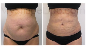 Upper and Lower Abdomen, Pannus, Love Handles and Hips, SmartLipo on all - 2 weeks