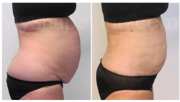 Upper and Lower Abdomen, Pannus, Love Handles and Hips, SmartLipo on all - 3 months
