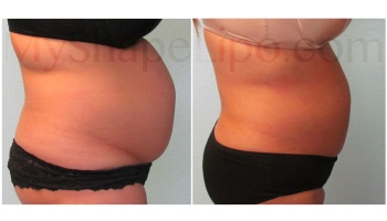Upper and Lower Abdomen, Love Handles, Hips and Back Bra Rolls - 7.5 months
