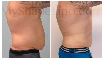 Upper and Lower Abdomen, Love Handles, Hips, Chest and Chin, SmartLipo on all - 6 months