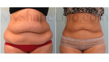 Upper and Lower Abdomen, Love Handles and Hips, SmartLipo on Upper and Lower Abdomen - 5 months