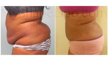 Upper and Lower Abdomen, Love Handles and Lower Back - 5.5 weeks