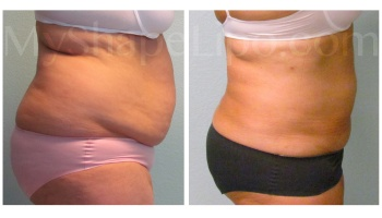 Upper and Lower Abdomen, Love Handles and Hips - 4.5 months