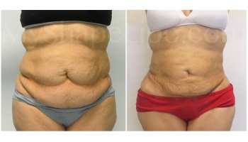 Upper and Lower Abdomen, Pannus, Love Handles and Hips - 3 weeks