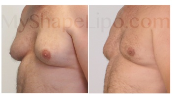 Chest with SmartLipo - 10 weeks