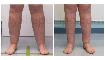 B-A cr CALVES, ANKLES from front CC 6 mo