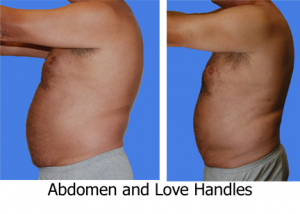abdomen-liposuction-love-handles-chest-127
