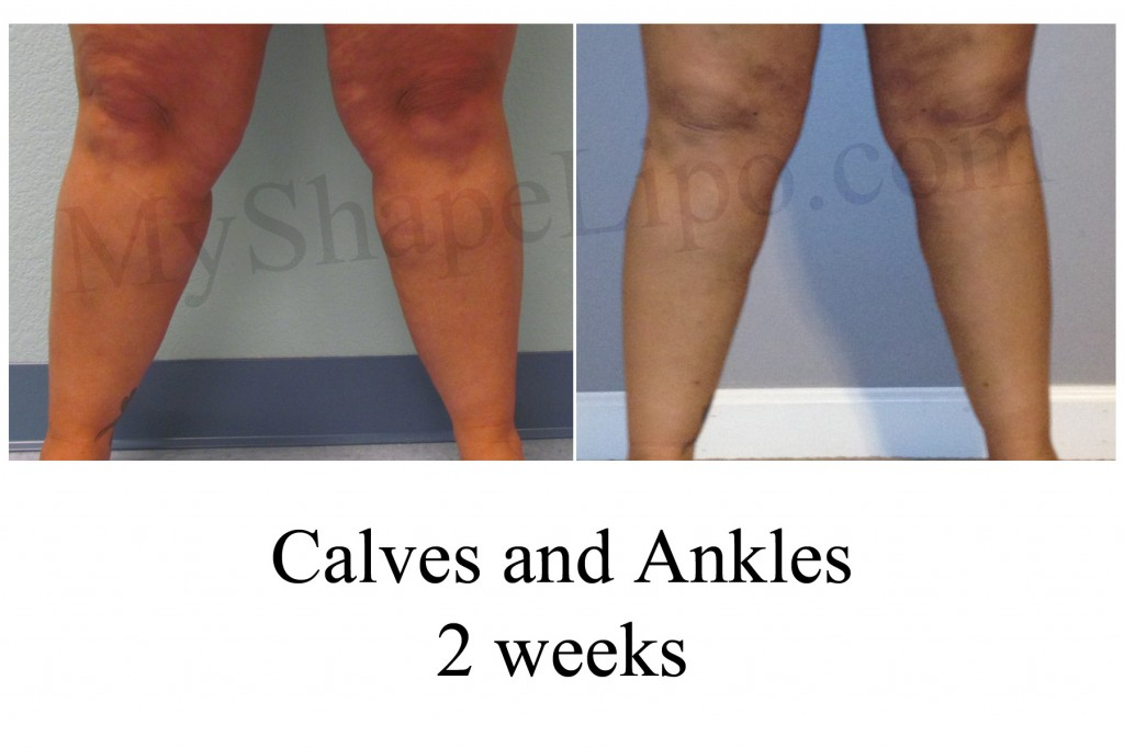 B-A Calves and Ankles from front KB 2 wks cr