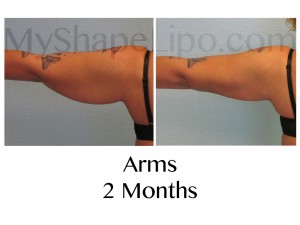 arms liposuction, arm lipo, arm liposuction, liposuction of the arms