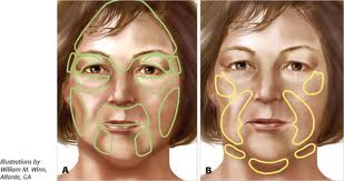 fat transfer to face, facial filler, anti aging, reduce wrinkles