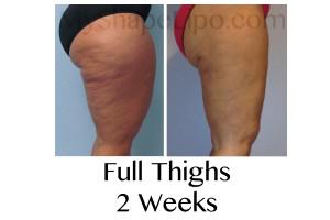 thigh liposuction, liposuction of the thigh, calves liposuction, calf liposuction
