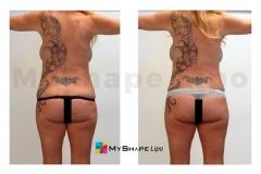 abdomen-06