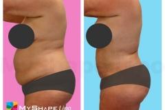 abdomen-27