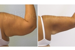 B-A-ONLY-photos-ARMS-SL6W-ARMS-from-back-rt-arm-JD-1-yr-cr1