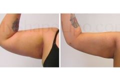 B-A-cr-ARMS-SL-ARMS-rt-from-front-VG-6.5-wks-