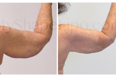 B-A-cr-rt-ARM-from-back-CC-6-mo-
